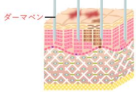 step1 | ダーマペンを皮膚を撫でるようにあてます