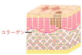 step2 | 新しいコラーゲンを生成し、肌の再生が始まります